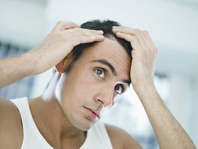 Treat-Hair-Loss